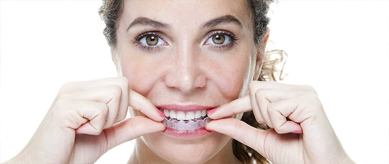 Invisalign Southpointe Dental Red Deer
